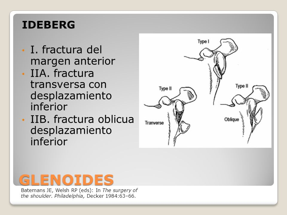 GLENOIDES IDEBERG I. fractura del margen anterior