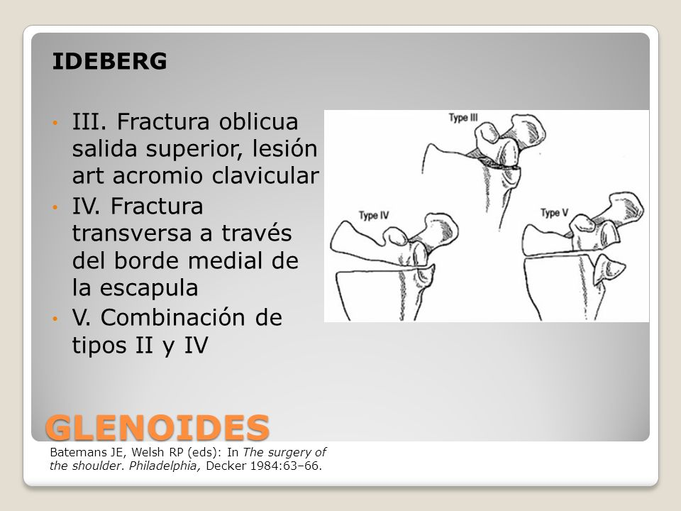IDEBERG III. Fractura oblicua salida superior, lesión art acromio clavicular. IV. Fractura transversa a través del borde medial de la escapula.