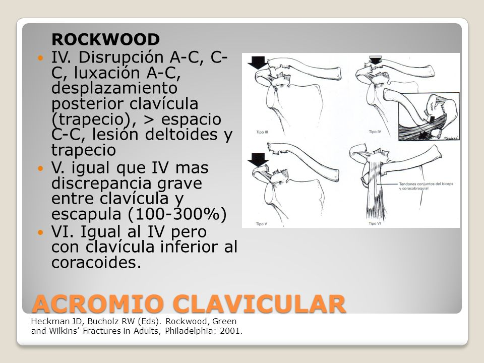 ACROMIO CLAVICULAR ROCKWOOD