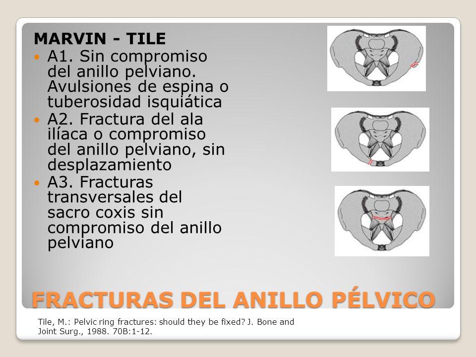 FRACTURAS DEL ANILLO PÉLVICO