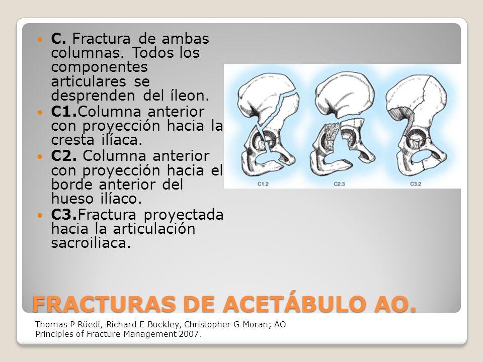 FRACTURAS DE ACETÁBULO AO.