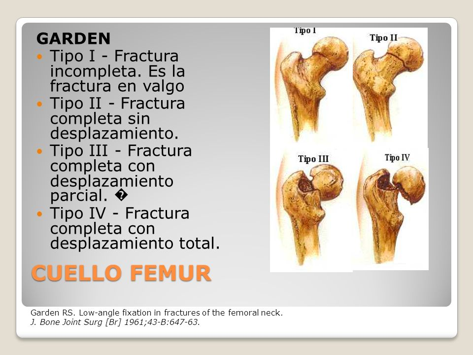 GARDEN Tipo I - Fractura incompleta. Es la fractura en valgo. Tipo II - Fractura completa sin desplazamiento.
