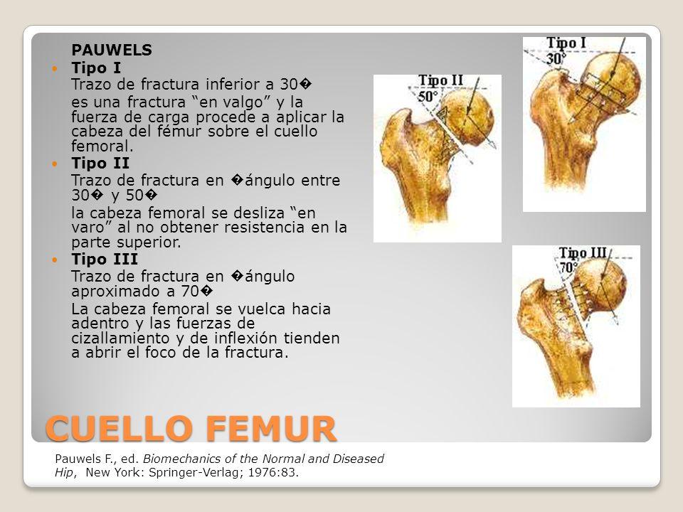CUELLO FEMUR PAUWELS Tipo I Trazo de fractura inferior a 30�