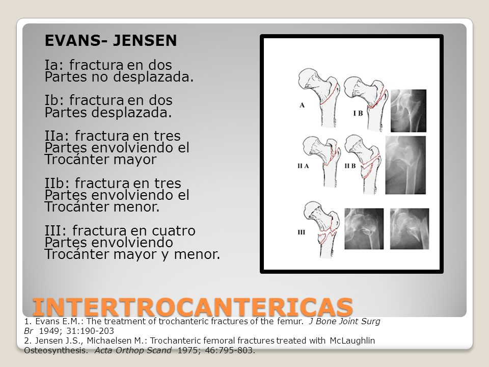 INTERTROCANTERICAS EVANS- JENSEN Ia: fractura en dos