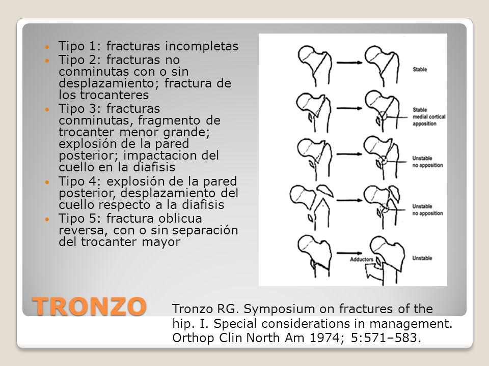 TRONZO Tipo 1: fracturas incompletas