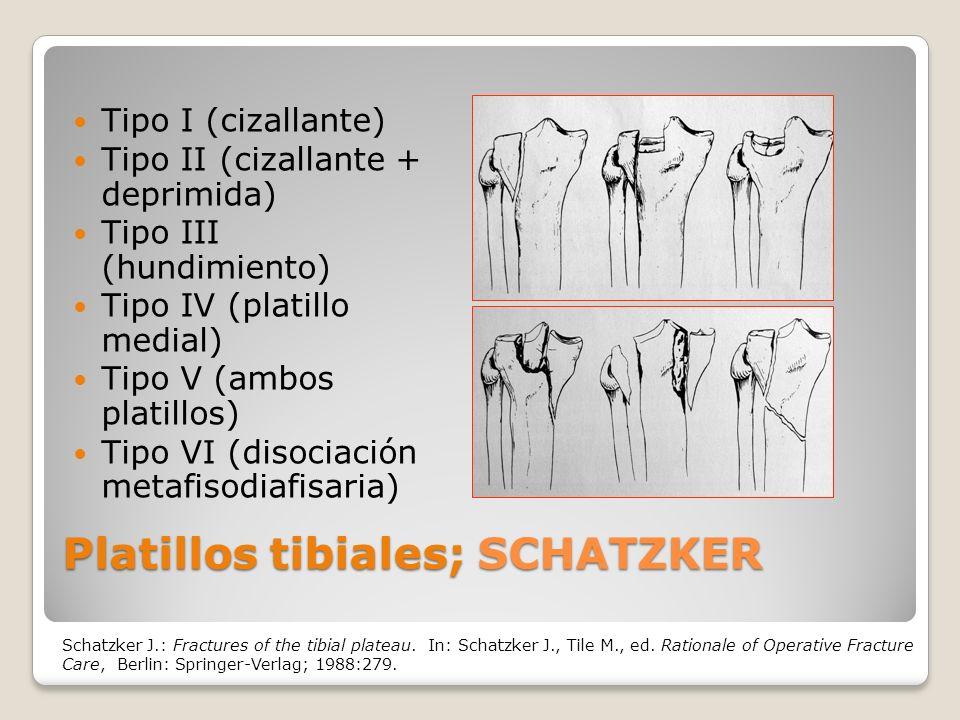 Platillos tibiales; SCHATZKER