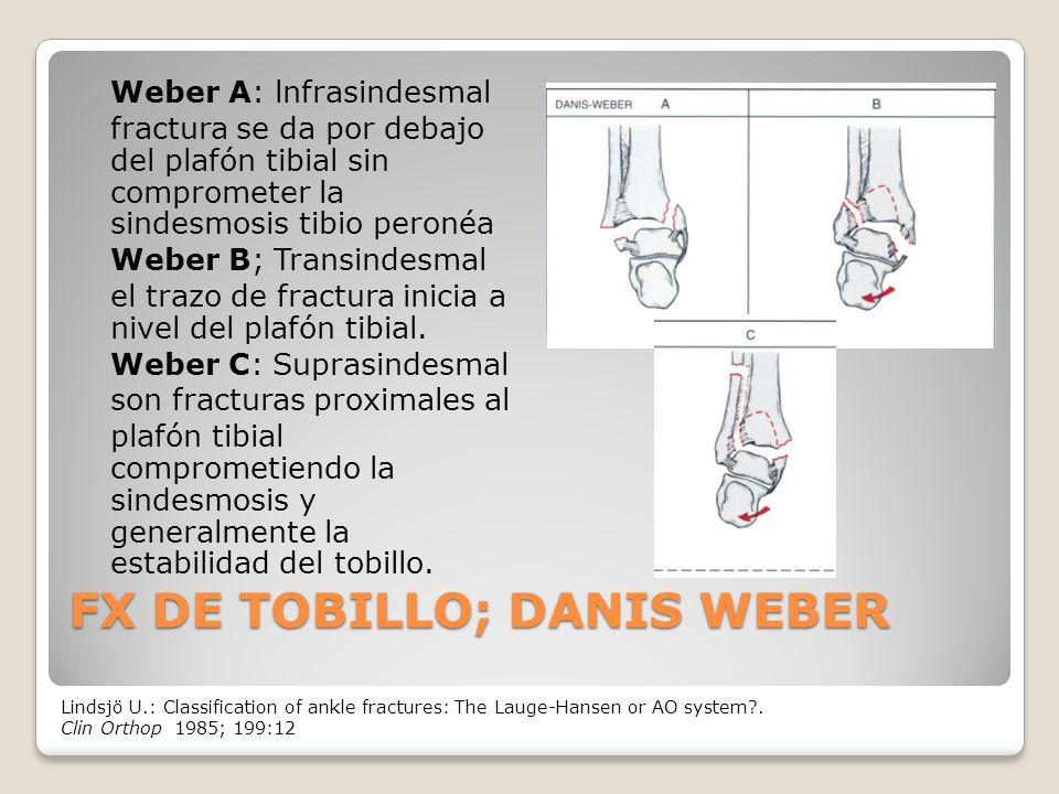 FX DE TOBILLO; DANIS WEBER