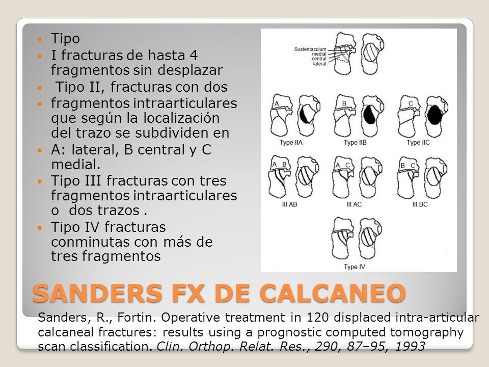 SANDERS FX DE CALCANEO Tipo