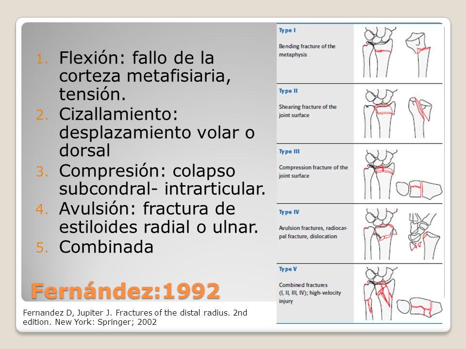 Fernández:1992 Flexión: fallo de la corteza metafisiaria, tensión.