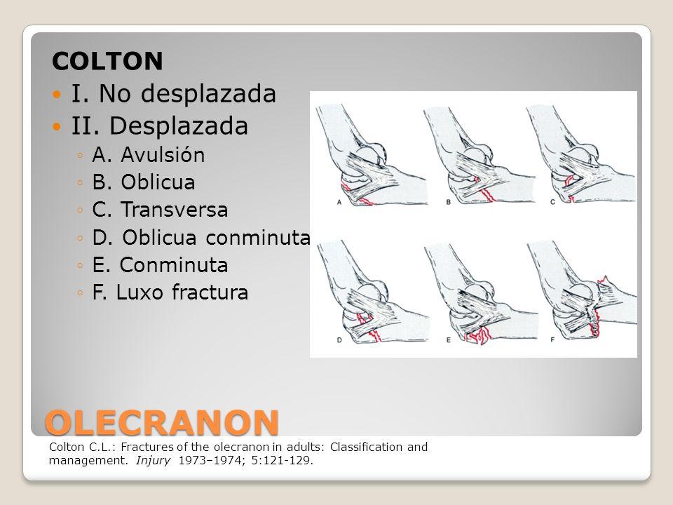 OLECRANON COLTON I. No desplazada II. Desplazada A. Avulsión