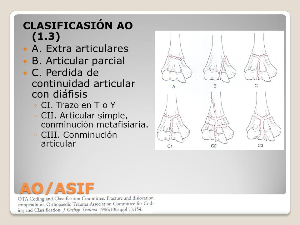 AO/ASIF CLASIFICASIÓN AO (1.3) A. Extra articulares