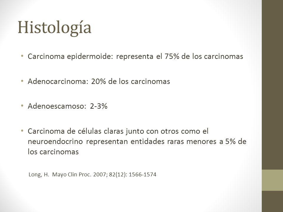 Histología Carcinoma epidermoide: representa el 75% de los carcinomas