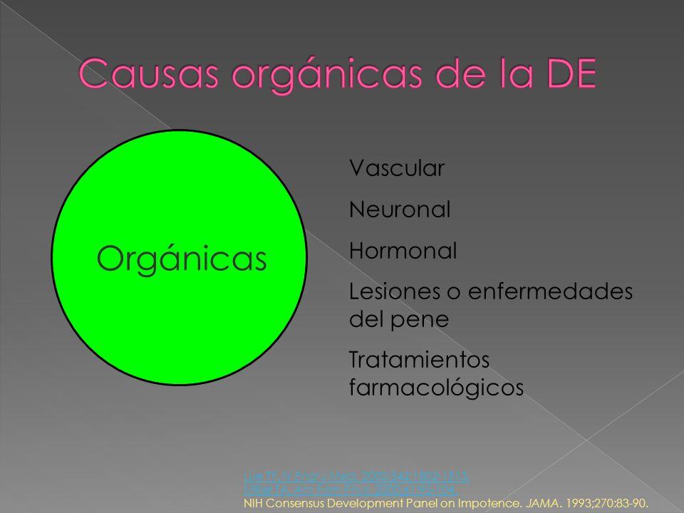 Causas orgánicas de la DE