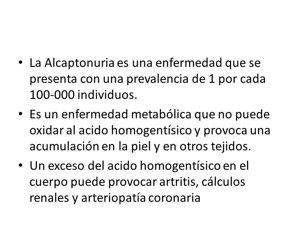 La Alcaptonuria es una enfermedad que se presenta con una prevalencia de 1 por cada 100-000 individuos.