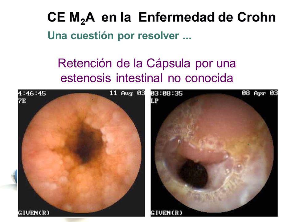 Retención de la Cápsula por una estenosis intestinal no conocida