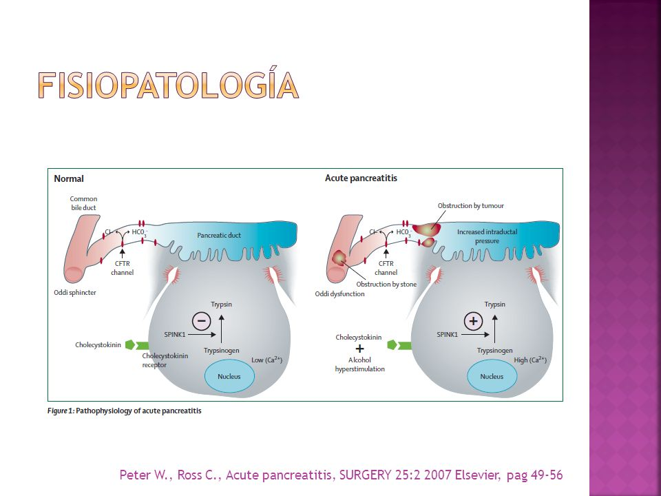 fISIOPATOLOGíA Peter W., Ross C., Acute pancreatitis, SURGERY 25:2 2007 Elsevier, pag 49-56