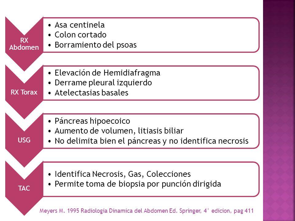 Elevación de Hemidiafragma Derrame pleural izquierdo