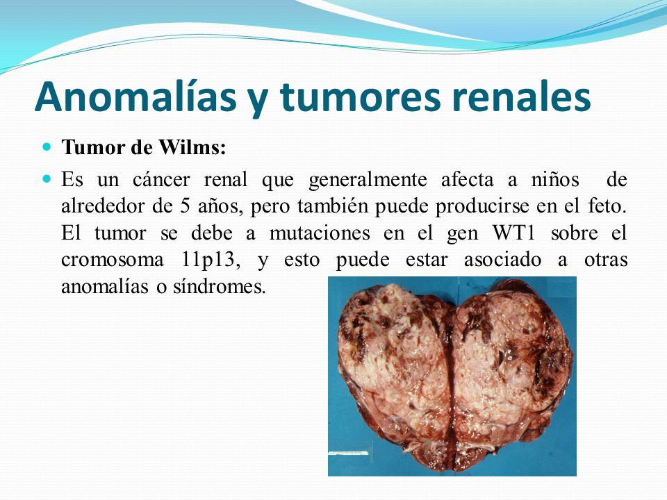 Anomalías y tumores renales