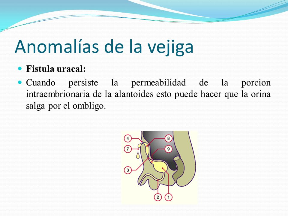 Anomalías de la vejiga Fistula uracal: