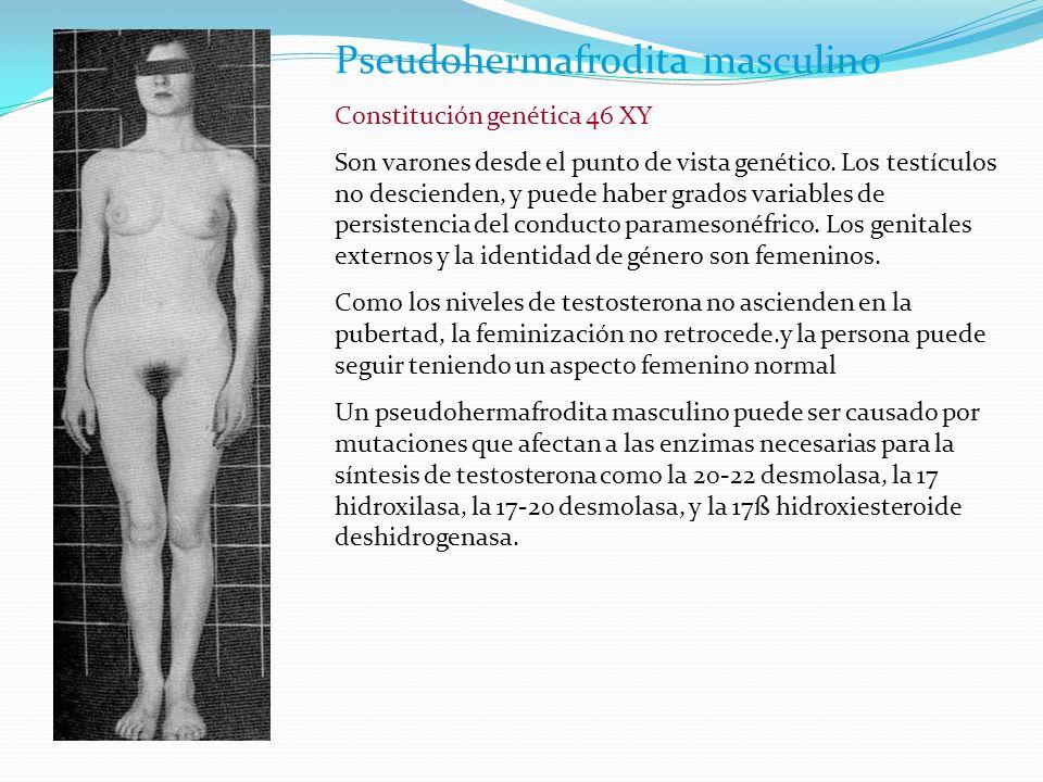 Pseudohermafrodita masculino