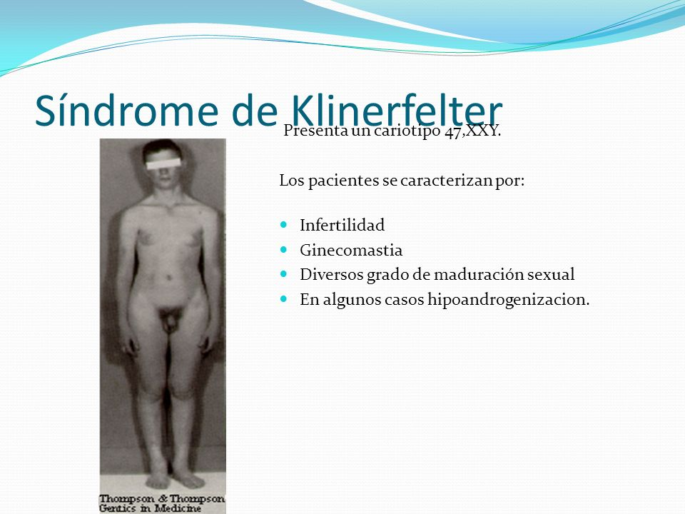 Síndrome de Klinerfelter