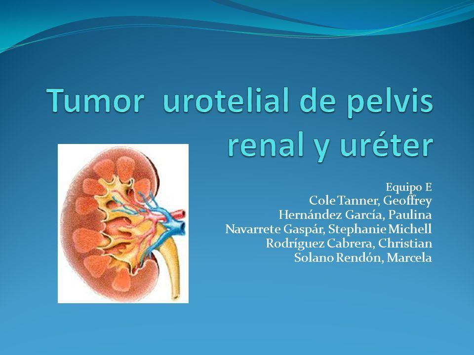 Tumor urotelial de pelvis renal y uréter