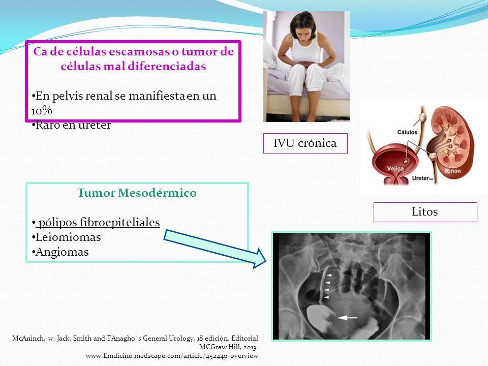 Ca de células escamosas o tumor de células mal diferenciadas