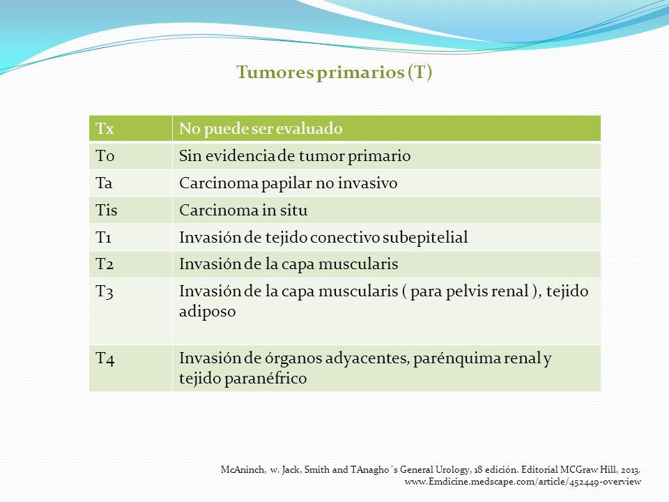 Tumores primarios (T) Tx No puede ser evaluado T0