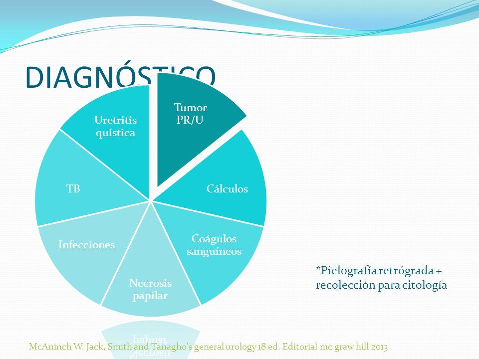 DIAGNÓSTICO *Pielografía retrógrada + recolección para citología