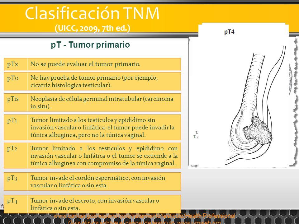 Clasificación TNM (UICC, 2009, 7th ed.) pT - Tumor primario pTx