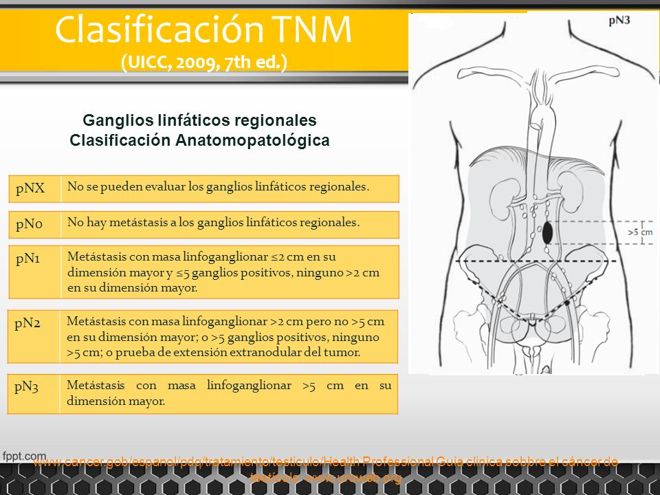 Ganglios linfáticos regionales Clasificación Anatomopatológica