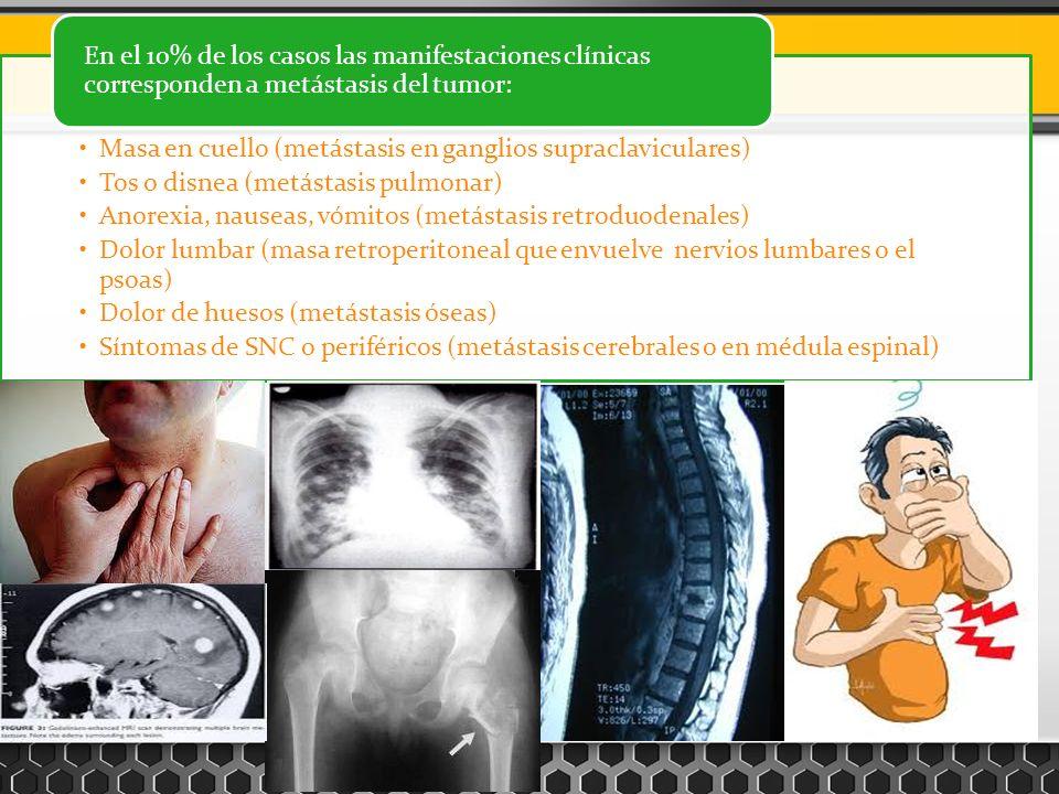 Masa en cuello (metástasis en ganglios supraclaviculares)