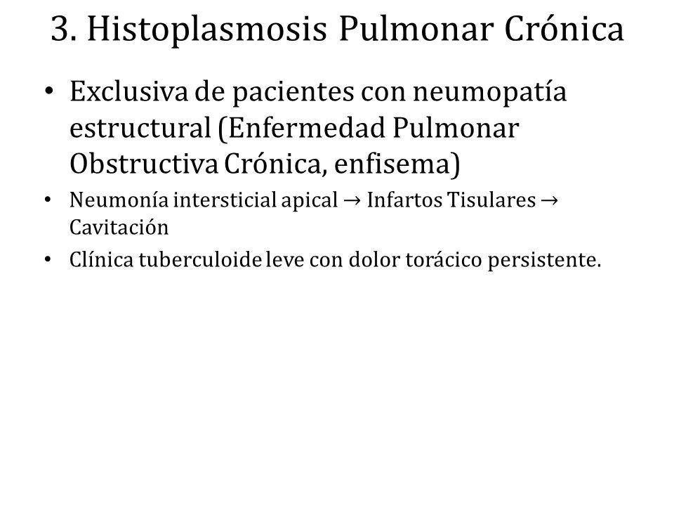 3. Histoplasmosis Pulmonar Crónica