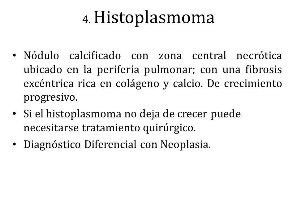 Diagnóstico Diferencial con Neoplasia.