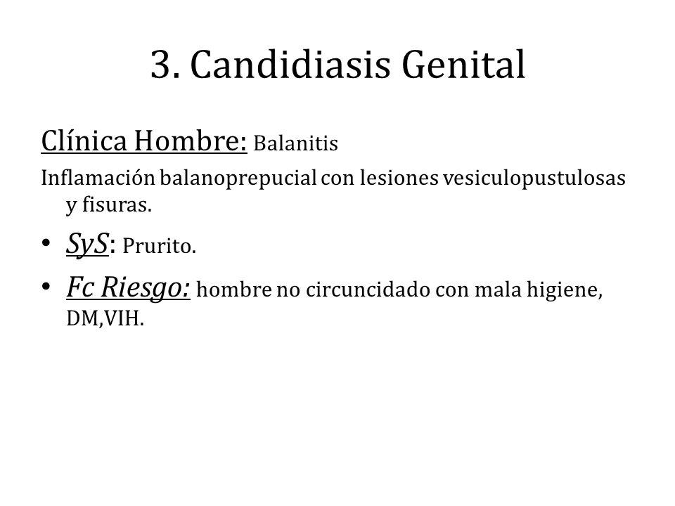 3. Candidiasis Genital Clínica Hombre: Balanitis SyS: Prurito.
