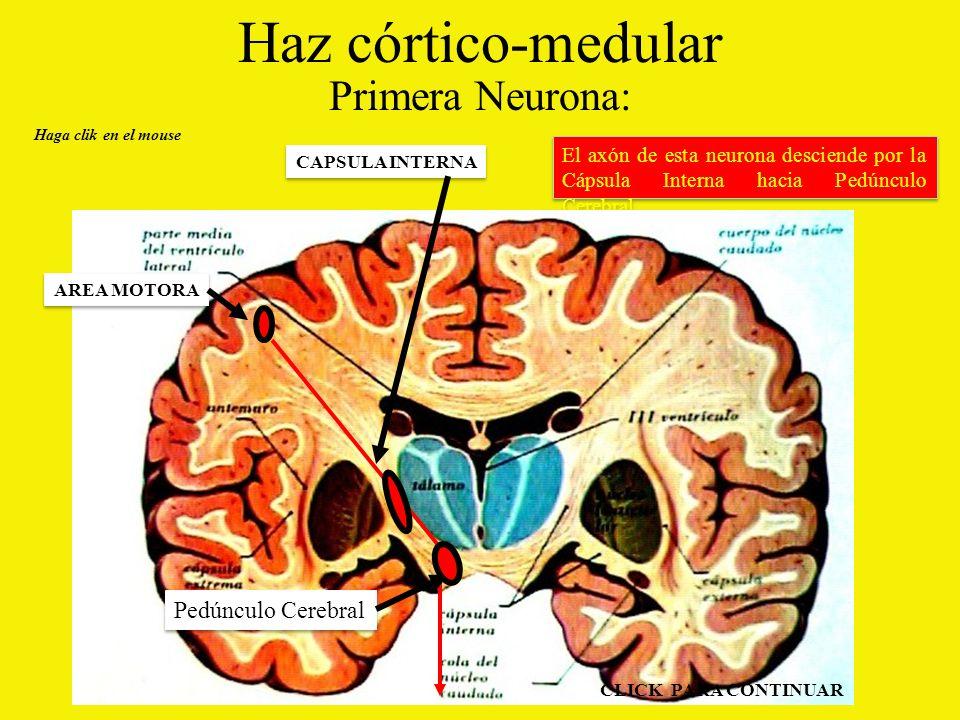 Haz córtico-medular Primera Neurona: Pedúnculo Cerebral