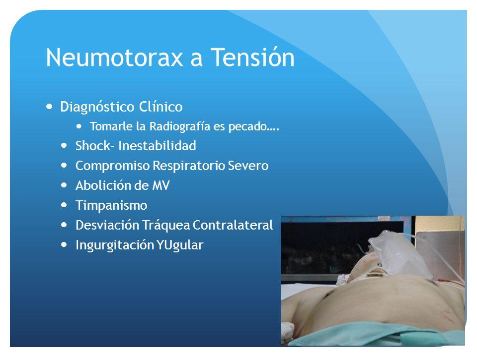 Neumotorax a Tensión Diagnóstico Clínico Shock- Inestabilidad