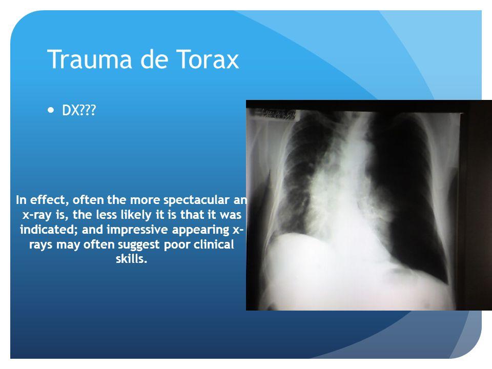 Trauma de Torax DX