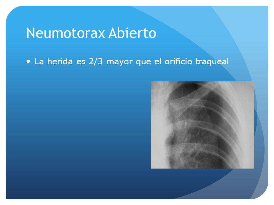 Neumotorax Abierto La herida es 2/3 mayor que el orificio traqueal
