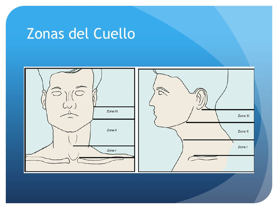 Zonas del Cuello