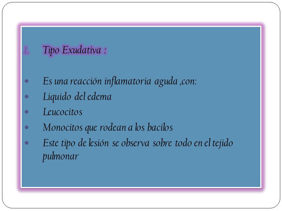 Tipo Exudativa : Es una reacción inflamatoria aguda ,con: Liquido del edema. Leucocitos. Monocitos que rodean a los bacilos.