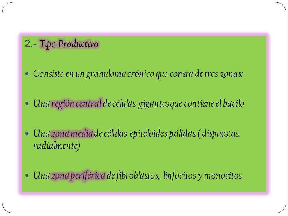 2.- Tipo Productivo Consiste en un granuloma crónico que consta de tres zonas: Una región central de células gigantes que contiene el bacilo.