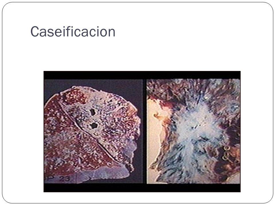 Caseificacion