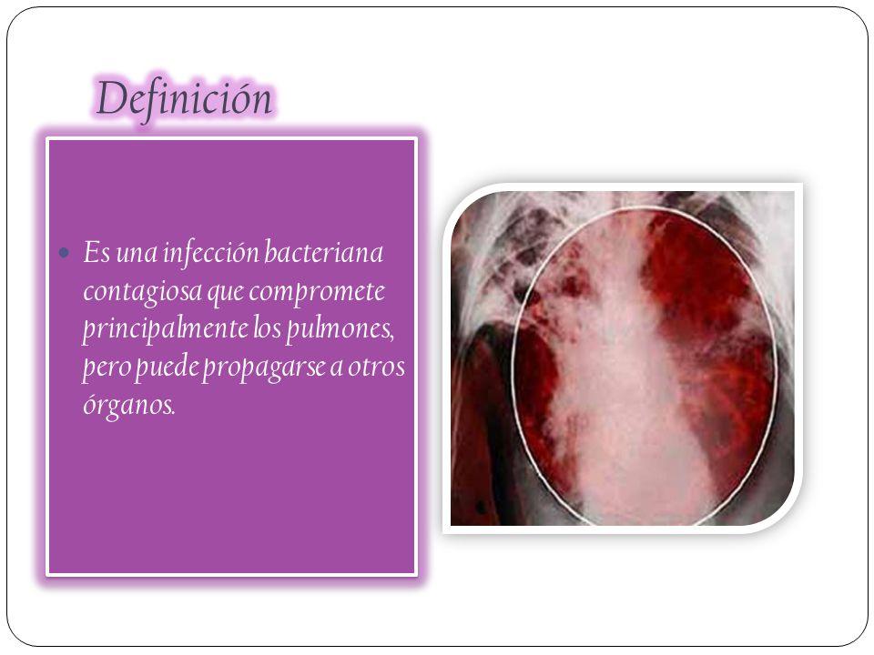 Definición Es una infección bacteriana contagiosa que compromete principalmente los pulmones, pero puede propagarse a otros órganos.