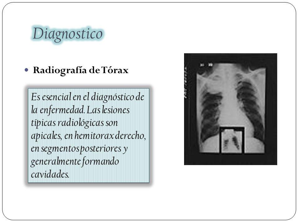 Diagnostico Radiografía de Tórax