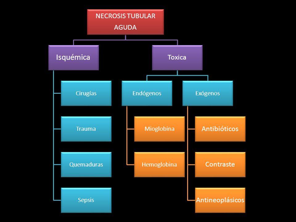 Isquémica NECROSIS TUBULAR AGUDA Toxica Antibióticos Contraste