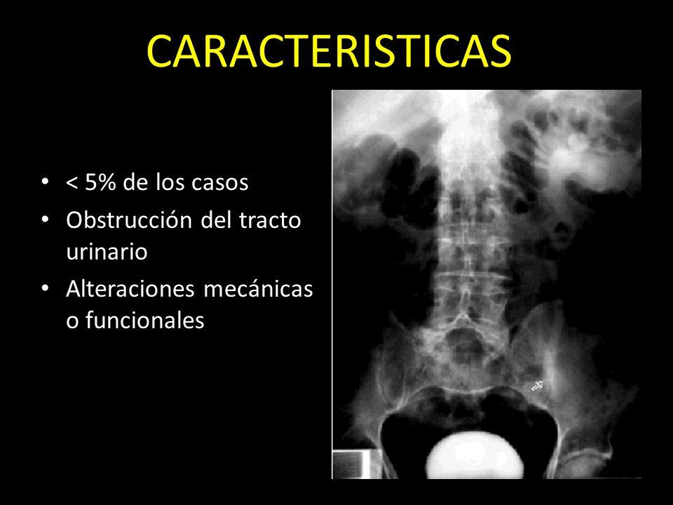 CARACTERISTICAS < 5% de los casos Obstrucción del tracto urinario
