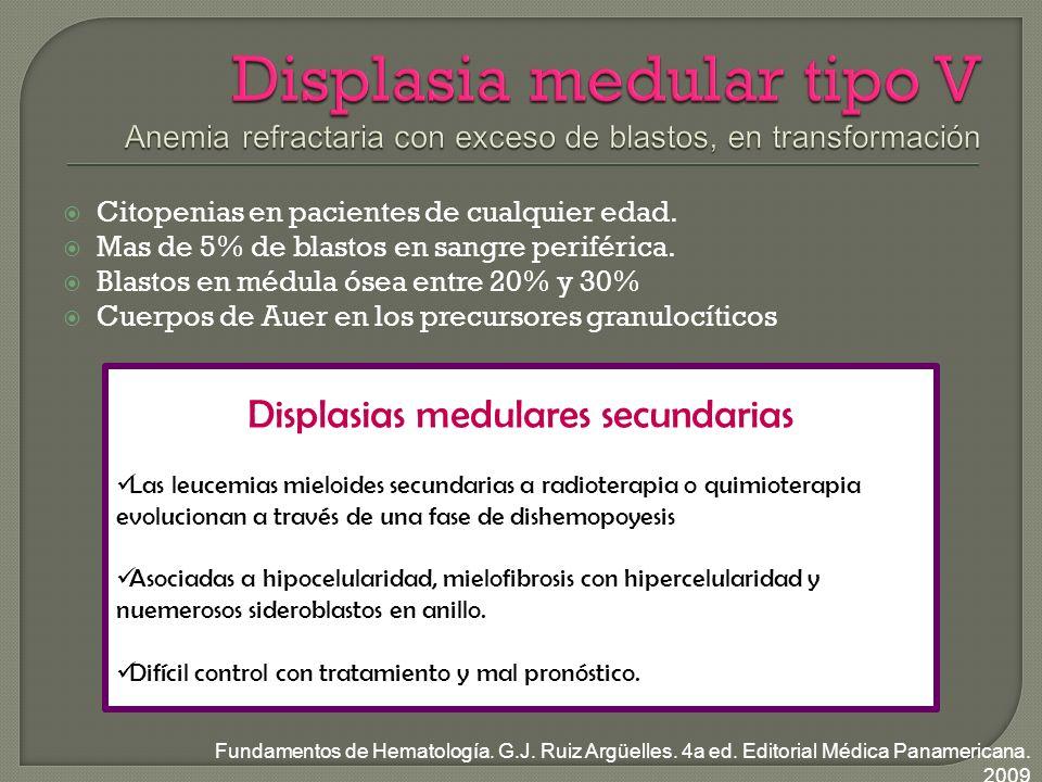 Displasias medulares secundarias