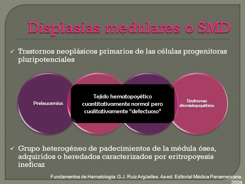 Displasias medulares o SMD