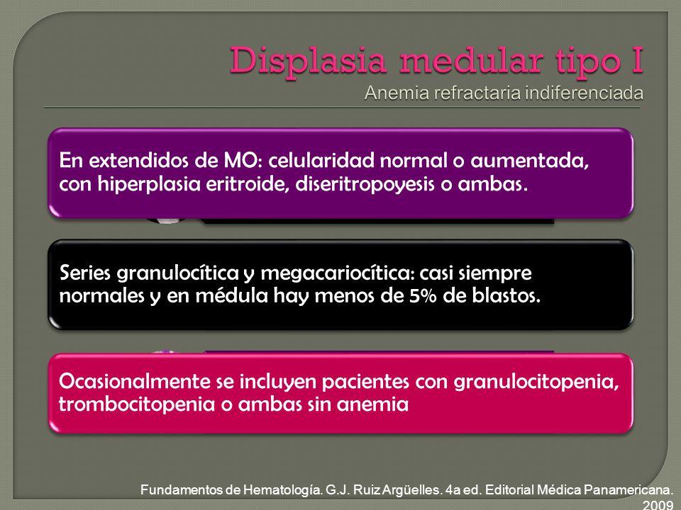 Displasia medular tipo I Anemia refractaria indiferenciada
